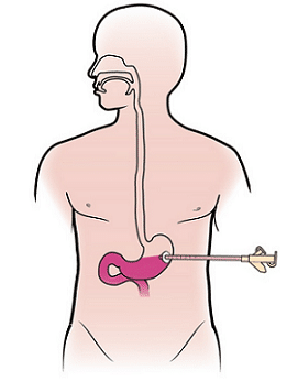 Diagram - PEG (feeding) Tube